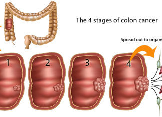 Colon Cancer Spread to Liver causes and treatments