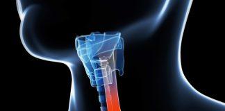 esophageal cancer staging